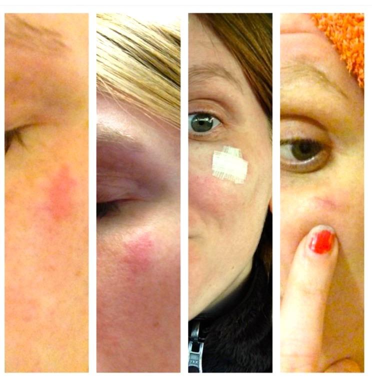 Running Skin Cancer Know Your Skin Endurance Magazine